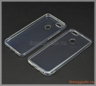Ốp lưng silicone siêu mỏng Mi5X (ultra thin soft case)