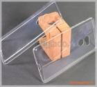 """Ốp lưng silicone cho Mi Mix 2 (5.99""""), loại siêu mỏng trong suốt, mẫu 2"""